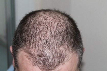 Jak walczyć z łysieniem?